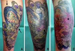 How long does it take for a tattoo heal?