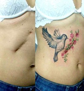 tummy tuck tattoo cover up
